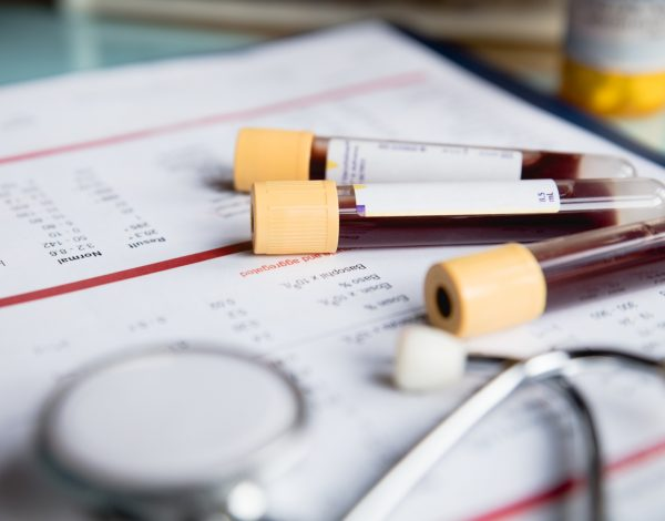 Test krvi koji može da otkrije više od 50 tipova kancera
