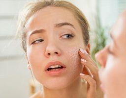 Zašto nam se koža peruta i kako to da spriječimo?