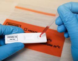 SZO: Nema potrebe za ponovnim testiranjem zaraženih prije izlaska iz izolacije